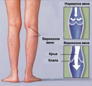 Как изглежда варикоцелето – разширени вени на тестиса? | varicose-veins.dptsarts.com