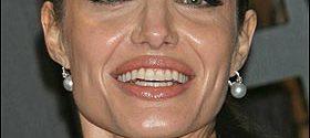 Мазна кожа – козметика за лице и грижа за нея през лятото
